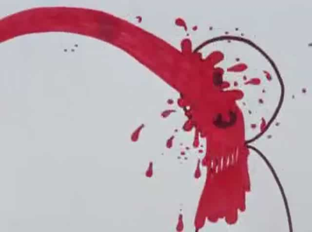 A picture of Hemorrhage